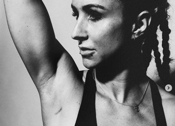 UK-Deejane Hannah Wants leidet an Brustkrebs